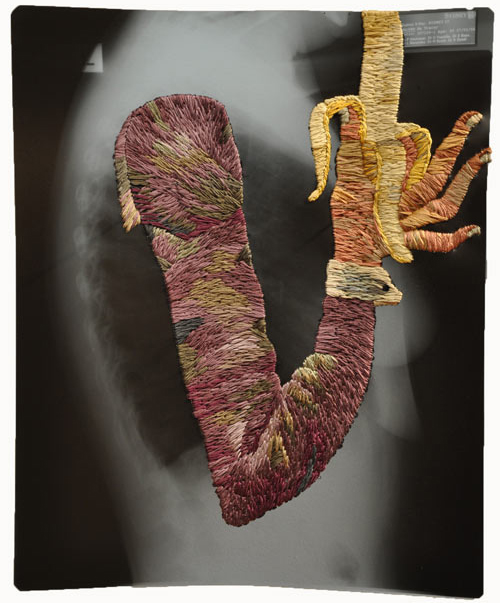 Embroidered X Rays By Matthew Cox