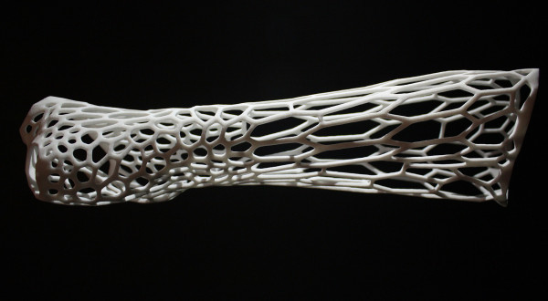 Bespoke polyamide 3D printed casts like the Cortex cast designed by Jake Evill liberate wearers from the cumbersome plaster casts used today.